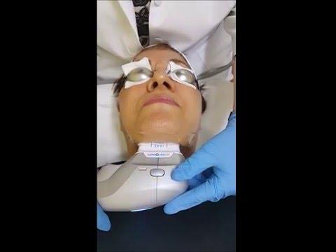 Dubai's best anti aging skin therapy UltraFormer treatment
