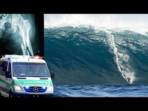 Massive Swell Hits West Oz - Gold Coast Surfer Has Leg Crushed By Huge Wave