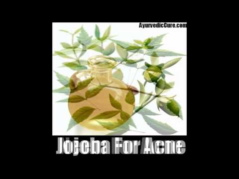 9 Effective Herbal Remedies For Acne