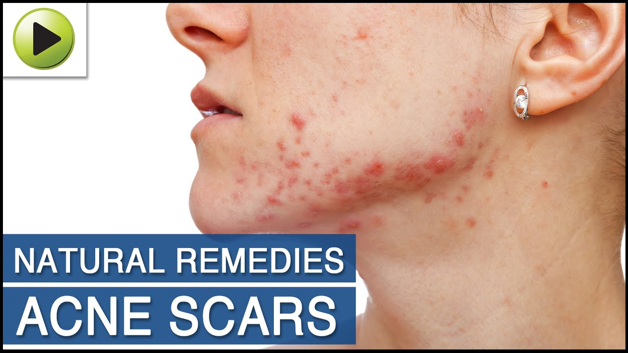 Skin Care Natural Ayurvedic Home Remedies