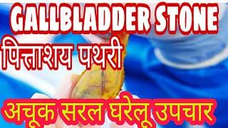 पित्ताशय  / Gallbladder stone की पथरी के कारण लक्षण और समाधान बिना दवा, ऑपरेशन