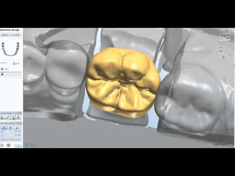 Kastle Mills your 3Shape Distributor in Canada is now offering Custom Tooth Libraries for Dental Wings and 3Shape owners Save time and money with improved and enhanced design capacity www.kastlemil...