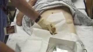 male_urinary_catheterization.mp4