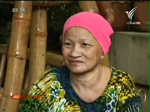สมุนไพรรักษามะเร็งหมอสมหมาย ที่นี่   ทีวีไทย