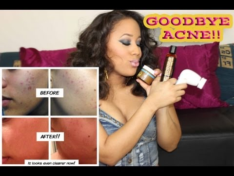 How to Get Rid of Acne & Acne Scars