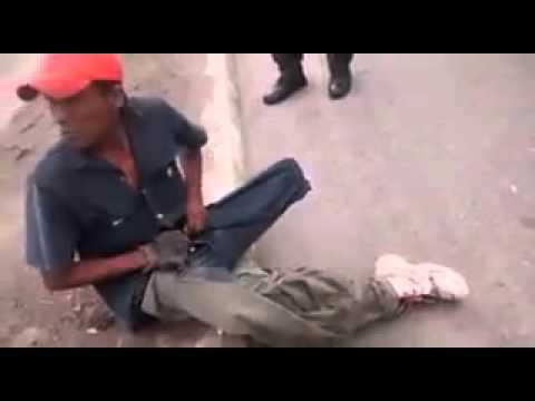 ¡Milagro en las calles!, a mocho de una pierna  le creció la extremidad apenas vio a los policías