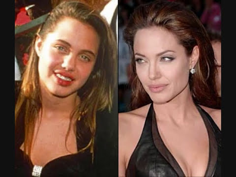 antes y despues de los famosos    Before and after the celebrities,
