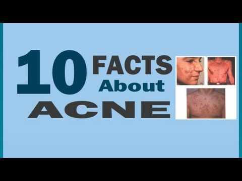 10 Acne Facts - Part 1 | Understanding The Causes Of Acne