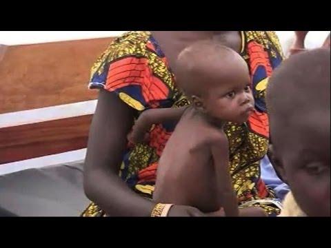 Plusieurs cas graves de malnutrition infantile à Bangui