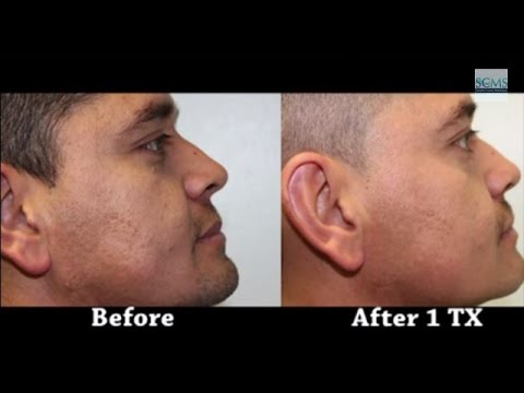 Hispanic Brother and Sister Return for 2nd Acne Scar Treatment