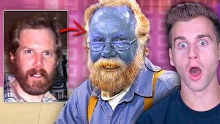 Meet The MAN Who Turned COMPLETELY BLUE! (INSANE)
