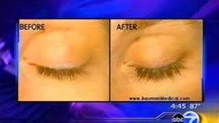 Eyelash Growth Procedures & Treatments - ABC News Chicago