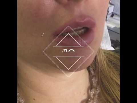 Dr.Shinder lips Губы за 5 мин без синяков и отеков‼️техника двух вколов