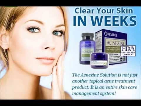 Acnezine Acne Skin Care Treatment- reviews - side effects pimple cream best product Australia USA UK