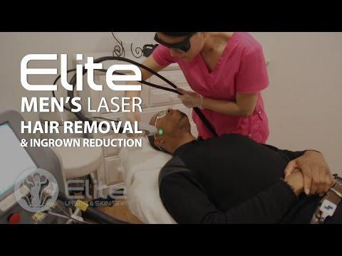 Men's Laser Hair Removal with Lavender Facial Add-On | Elite Laser & Skin Spa