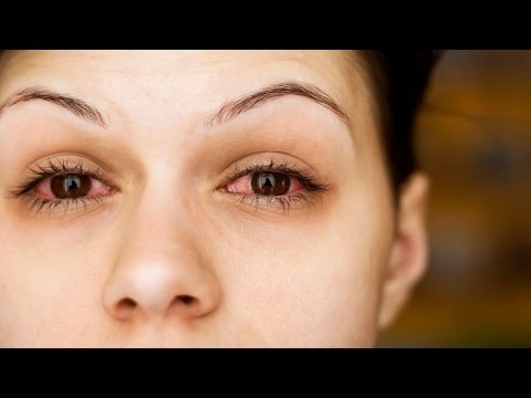 7 Causes For Bloodshot Eyes That You Did Not Know!
