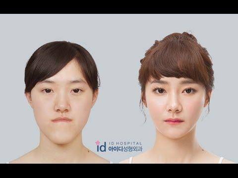 Operasi Plastik Korea Sebelum dan Sesudah [Let Me In China] - Indonesia Subtitle