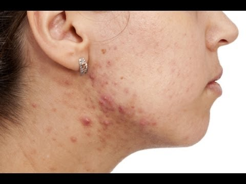 Remedy For Acne - Cosmetic Treatment, Care And Diet