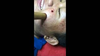 BIG ACNE REMOVAL ON THE FACE | PIMPLES TREATMENT BY FACIAL CUPPING THERAPY