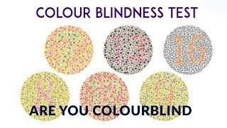 Colour blindness test- test for colour blind-ishihara test-Satyendra Mishra