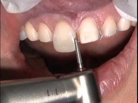 Porcelain Veneers: Clinical Techniques for Exceptional Esthetics by Dr. Robert Winter