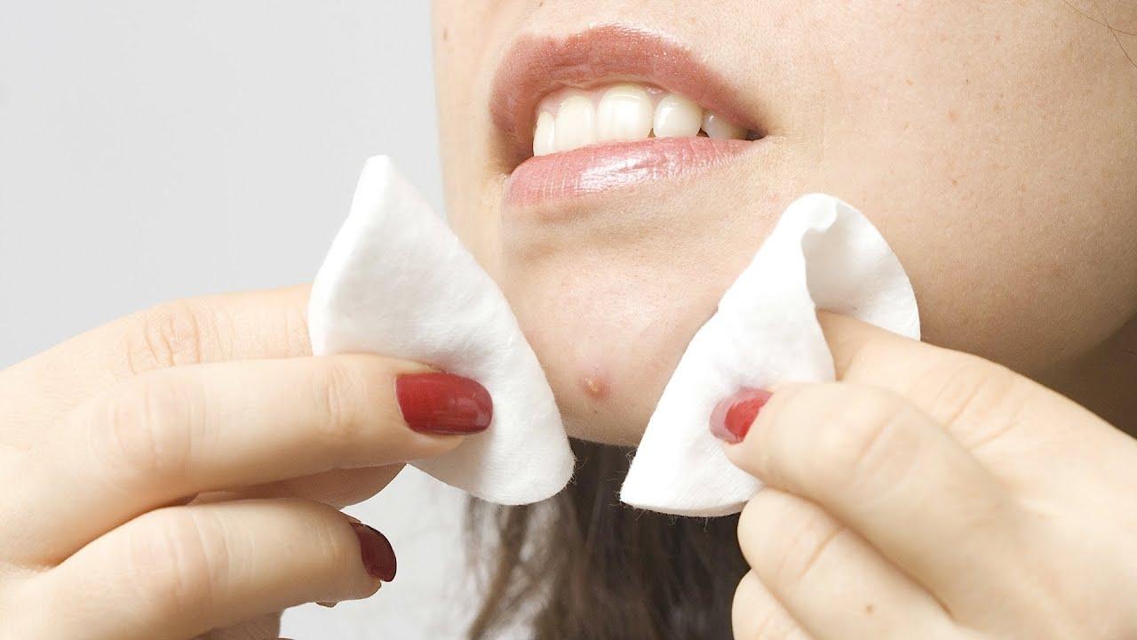 Как избавиться от жировиков на лице в короткие сроки? 95