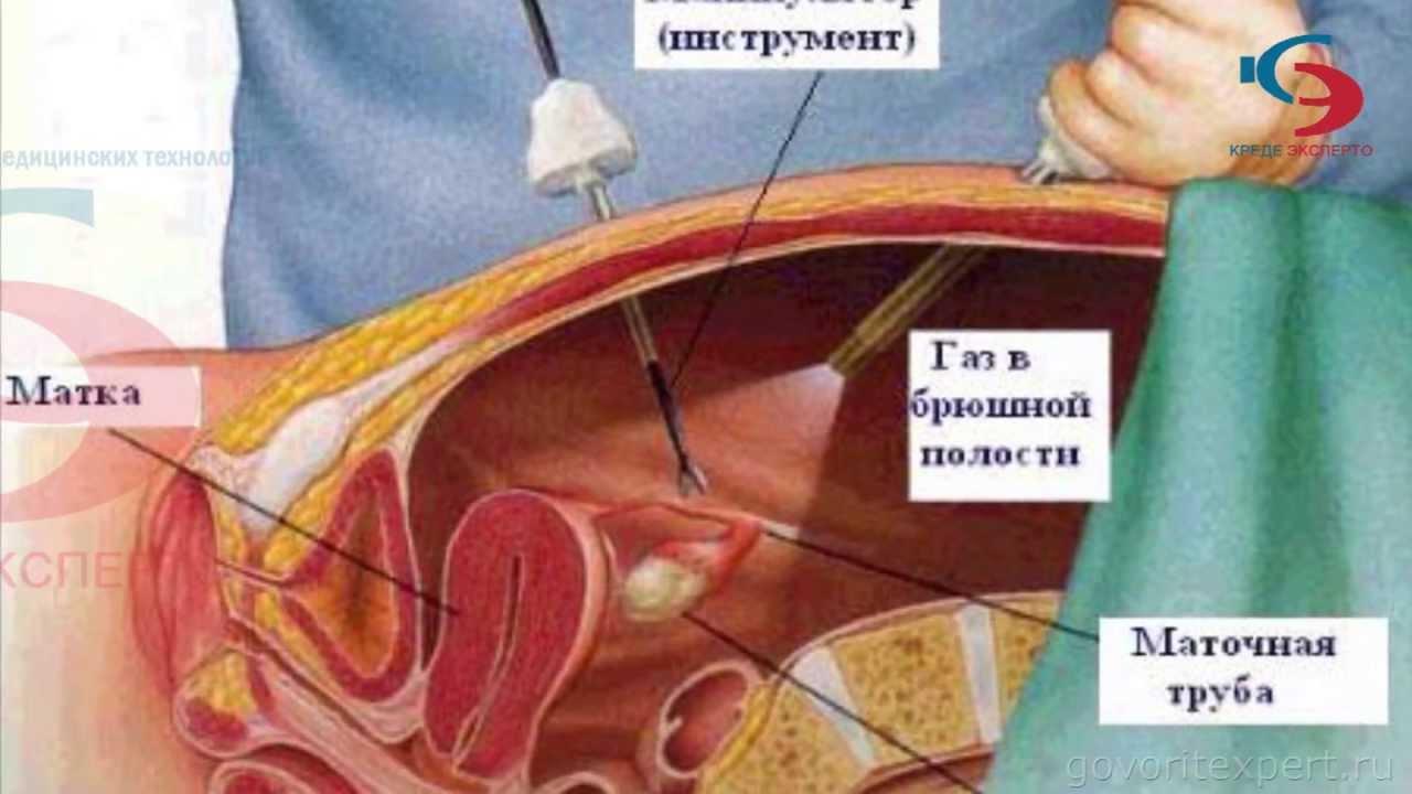 Лапароскопия и наступление беременности