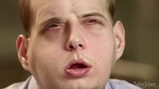 Man Gets Full Facial Transplant