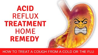 Acid reflux treatment home remedy | 9 ways to relieve acid reflux without medication