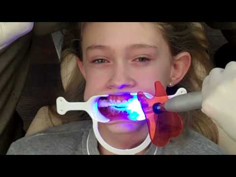 Putting Braces On - See how it is done!