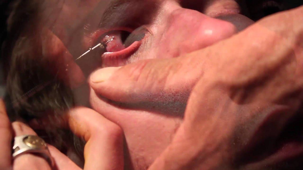 Vivi's Sclera Tattoo procedure - YouTube