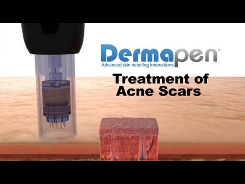 Dermapen Micro Needling Treatment of Acne Scars Animation by Needlelogic.com