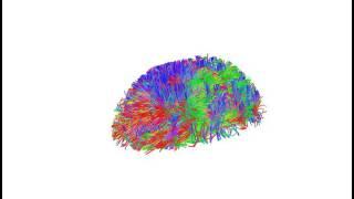 DSI Brain Scan 2017