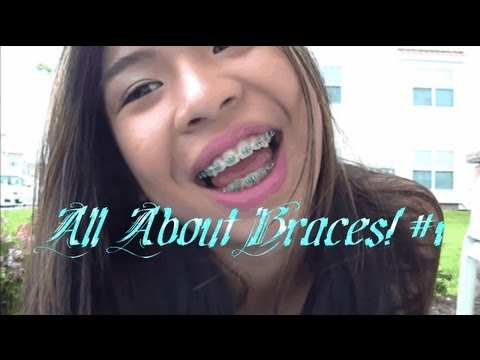 All About Braces! ♡ [Getting them on, My essentials, Tightening, Pain & More]