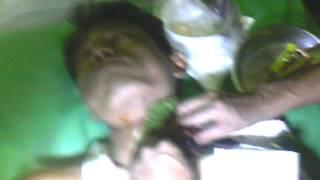 Video Operasi Kelenjar Tiroid by Ki Mijil Pamungkas
