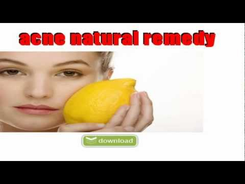 acne natural remedy,acne herbal remedies
