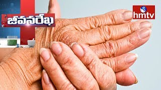 Arthritis Problems and Treatment | Homeocare International | Jeevana Rekha | hmtv