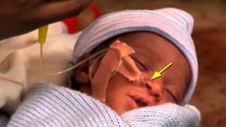 Feeding with a Gastric Tube (Spanish) - Newborn Care Series