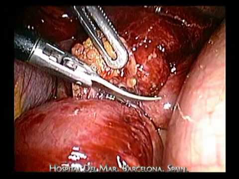 Oclusión intestinal por adherencias: adhesiolisis por laparoscopia
