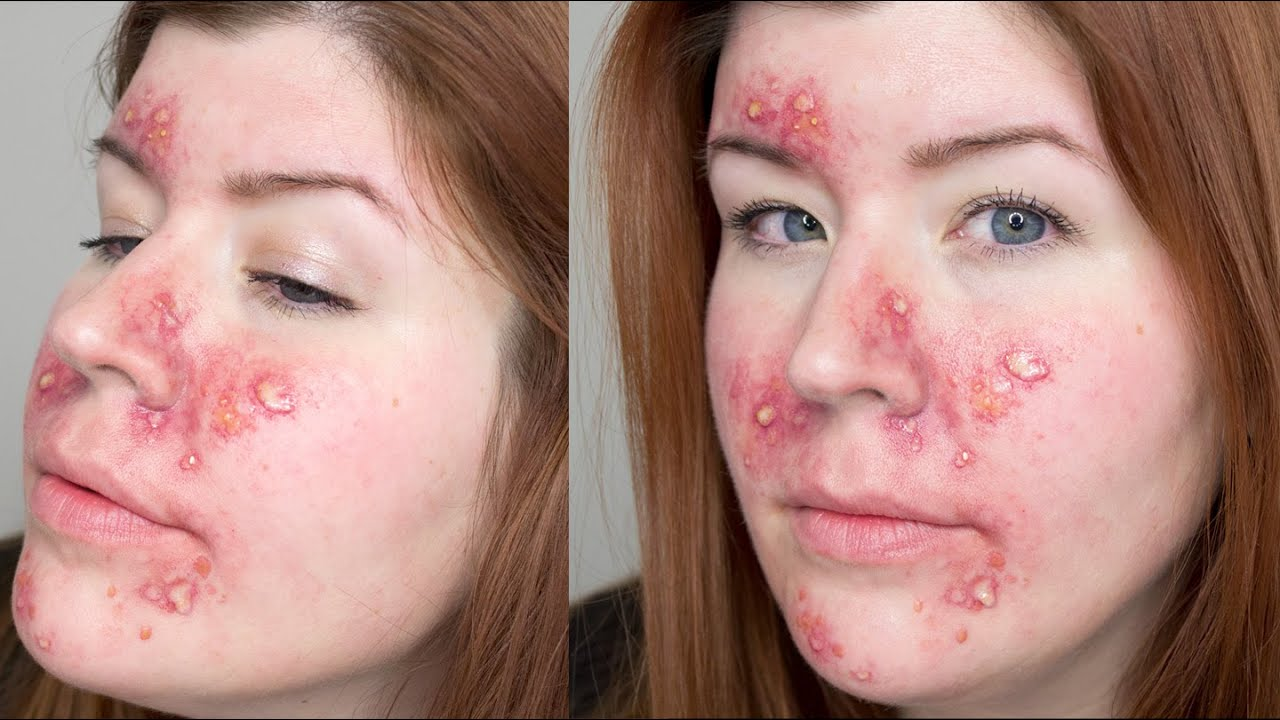 Fx Makeup Series Acne Youtube