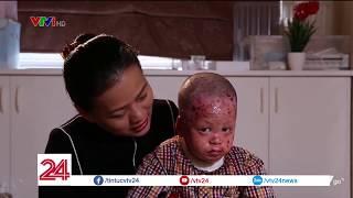 Cô tiên của những đứa trẻ mắc bệnh lột da | VTV24