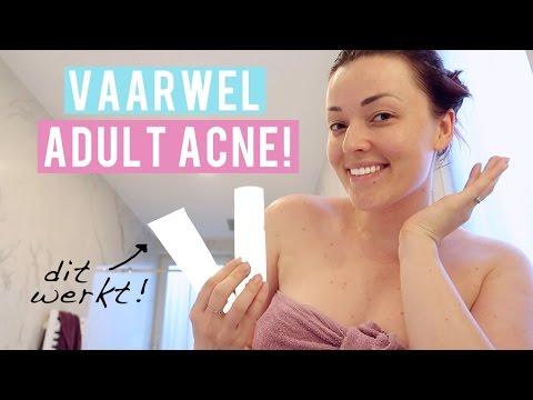 Mijn ultieme tip tegen adult acne | Beautygloss