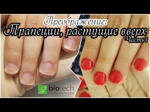 Трапециевидные ногти как исправить