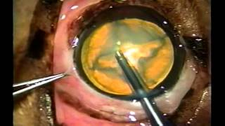 Division of Cataract Lens in Dog - Tufts Veterinary (Video 3 B)