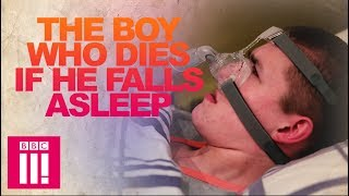 Our Teen Who Dies If He Falls Asleep | Living Differently