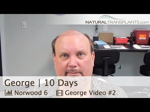 FUE & FUT Hair Transplant Truth, Suture Line 10 Day Post-Op - Orlando, Florida (George)