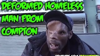 [Homeless With Only Half a Head] Video