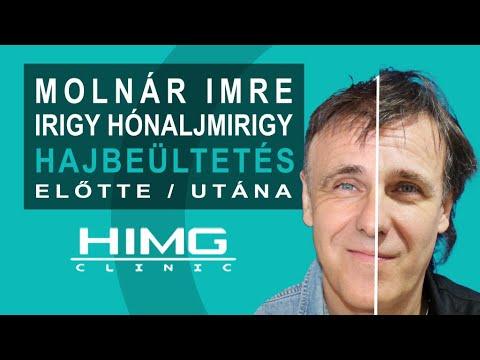 Irigy Hónaljmirigy: Szabó Imre Hajbeültetése - HIMG Hajbeültetési klinika