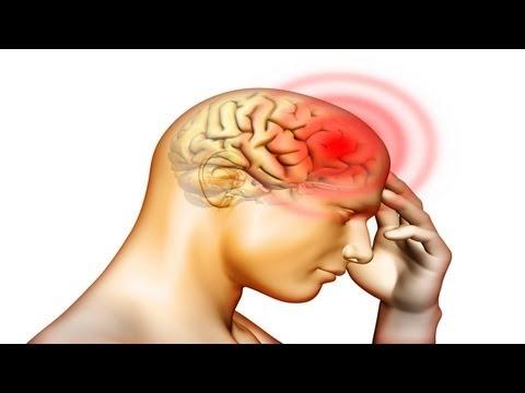 Fatal Brain Haemorrhage
