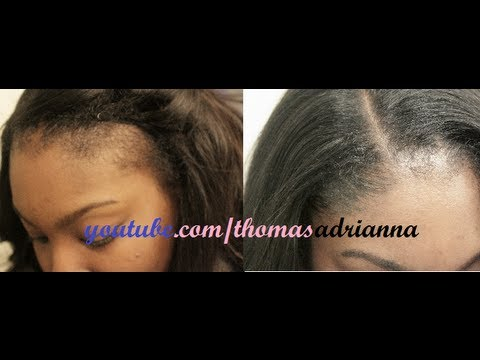 No Edges? My secret to THINNING edges (RELOADED)